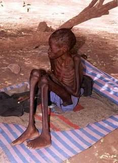 StarvingChildren